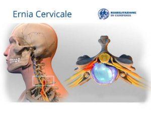 ernia cervicale riabilitazione campania