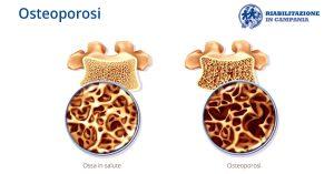 fisioterapia per osteoporosi riabiltazione campania