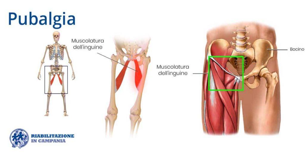 dove si trovano i muscoli dellinguine