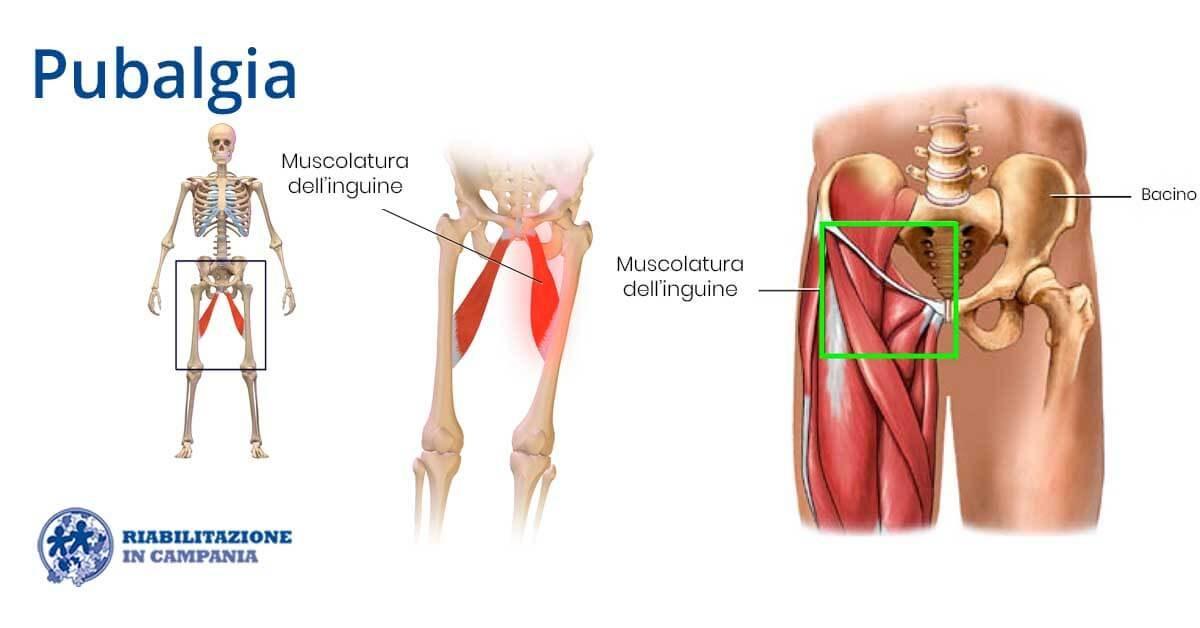 pubalgia fisioterapia riabilitazione campania napoli