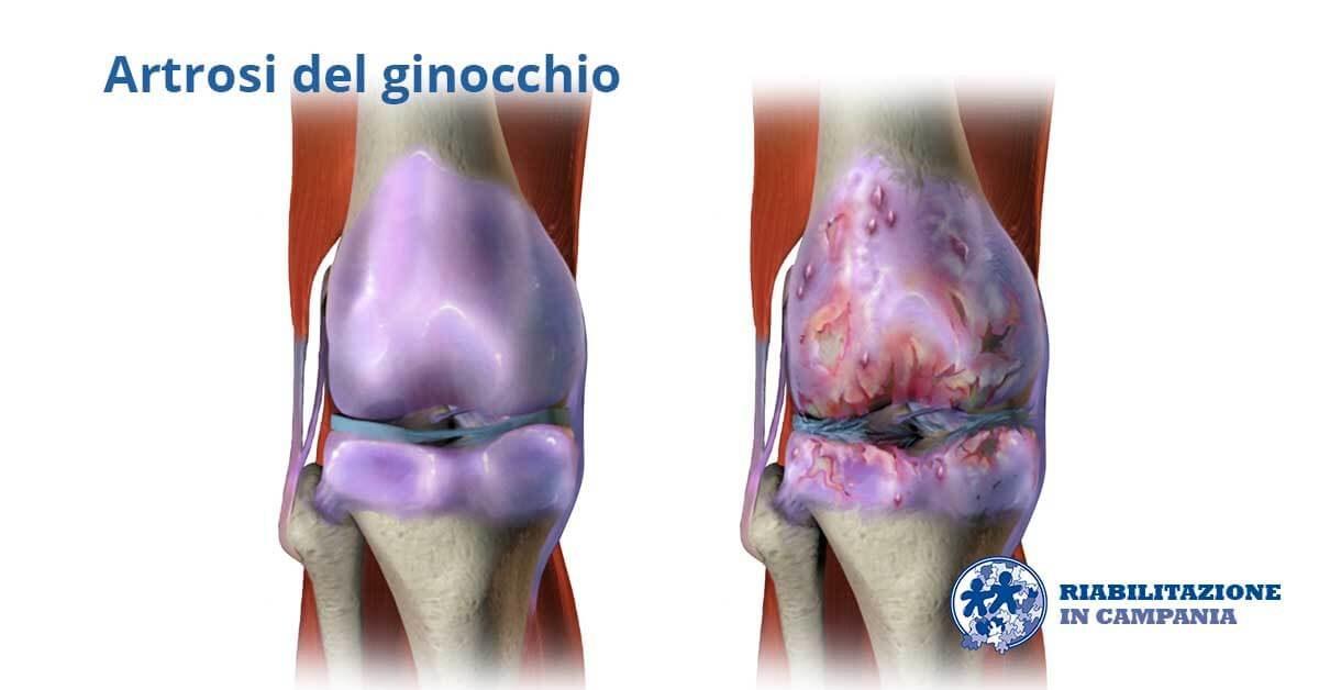 artrosi ginocchio terapia fisica napoli riabilitazione campania