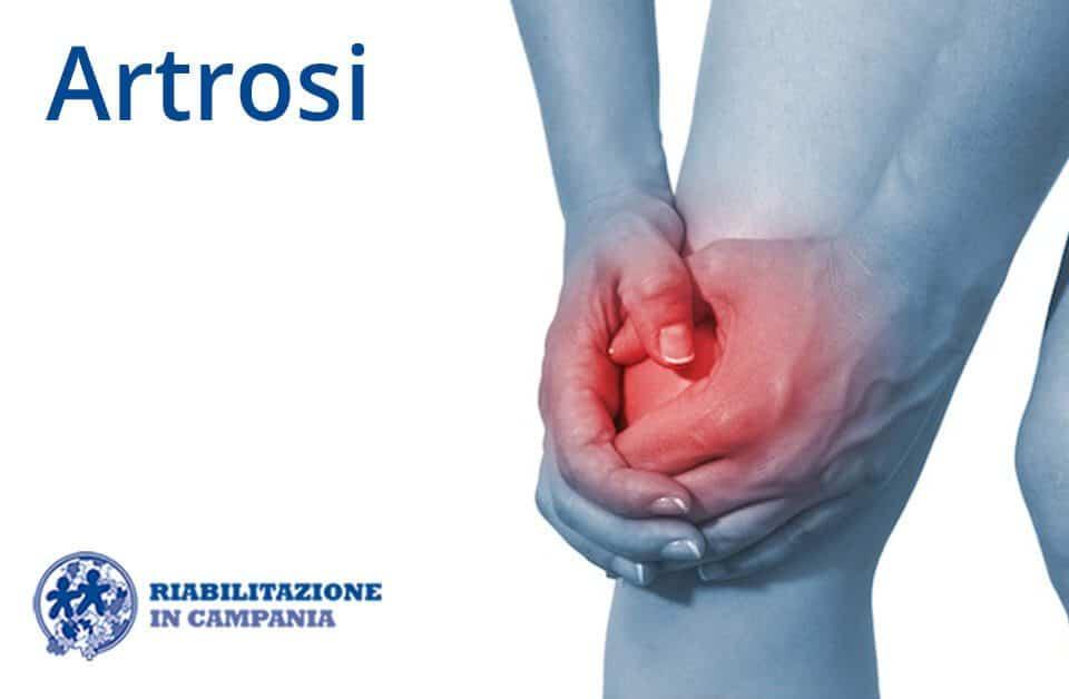 artrosi riabilitazione campania sito