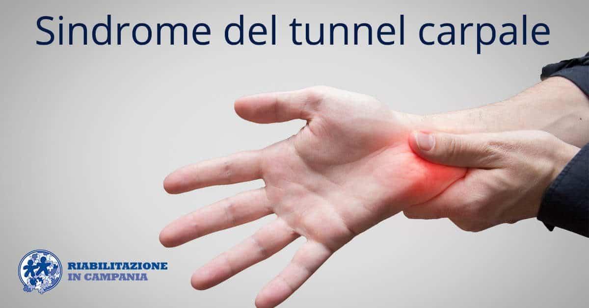 sindrome tunnel carpale-riabilitazione-campania-sito-1200x628