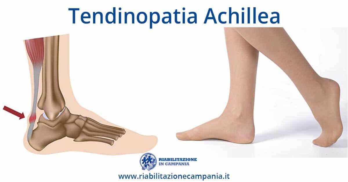 Immagine rappresentiva un piede che è affetto da tendinopatia achillea