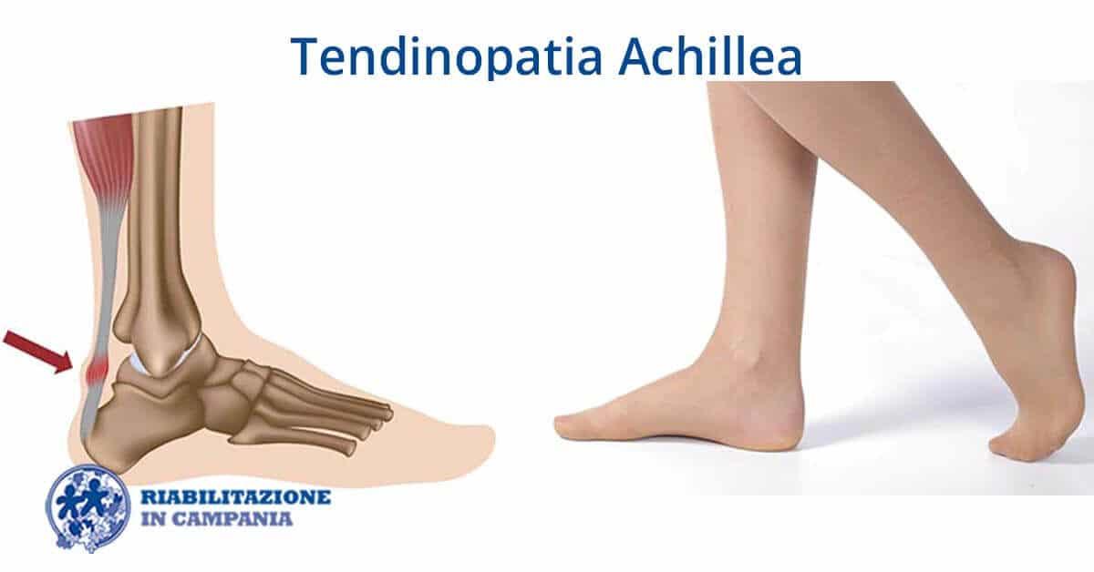 tendinopatia riabilitazione campania sito