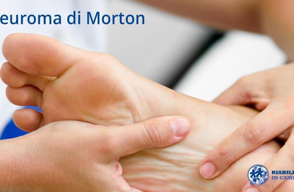 neuroma di Morton riabilitazione campania napoli