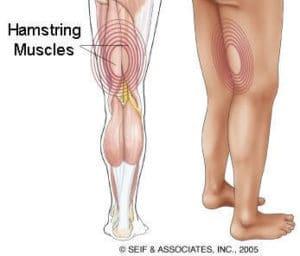 Hamstring syndrome riabilitazione campania napoli 3