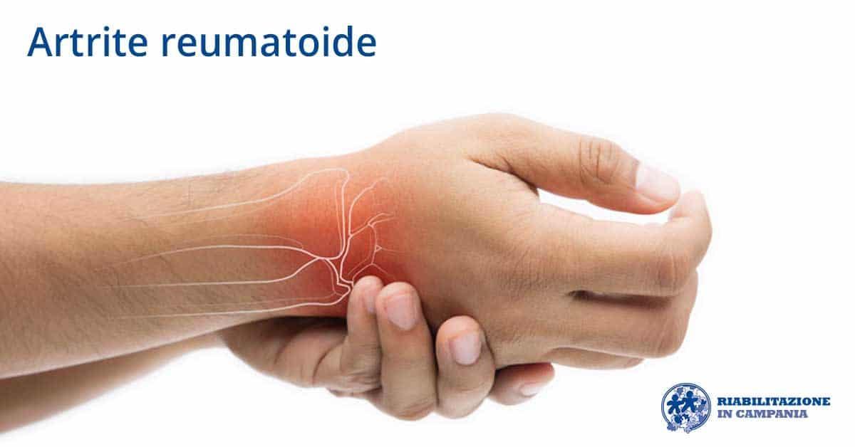 Artrite: ruolo centrale per la riabilitazione