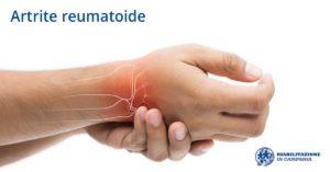 artrite riabilitazione campania