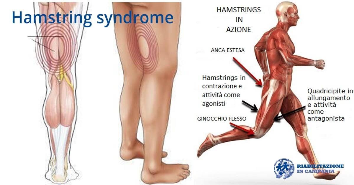 hamstring syndrome riabilitazione campania