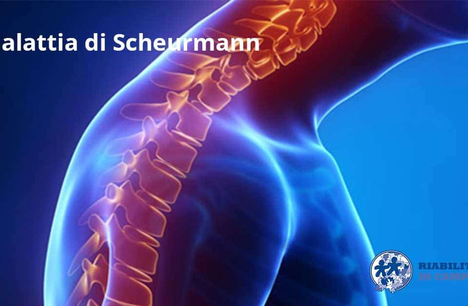 malattia di Scheuermann riabilitazione campania napoli