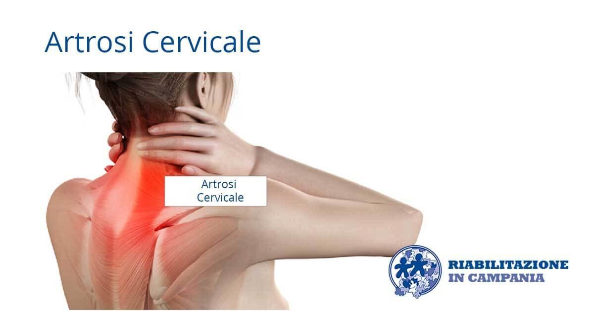 artrosi-cervicale-riabilitazione-campania