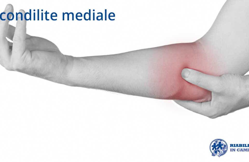 epicondilite mediale fisioterapia riabilitazione campania napoli