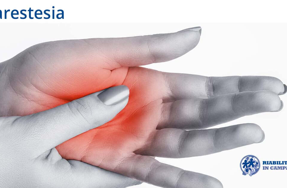 parestesia fisioterapia riabilitazione campania