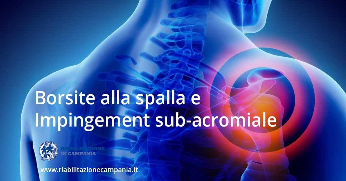 Borsite alla spalla e impingement sub acromiale fisioterapia riabilitazione napoli