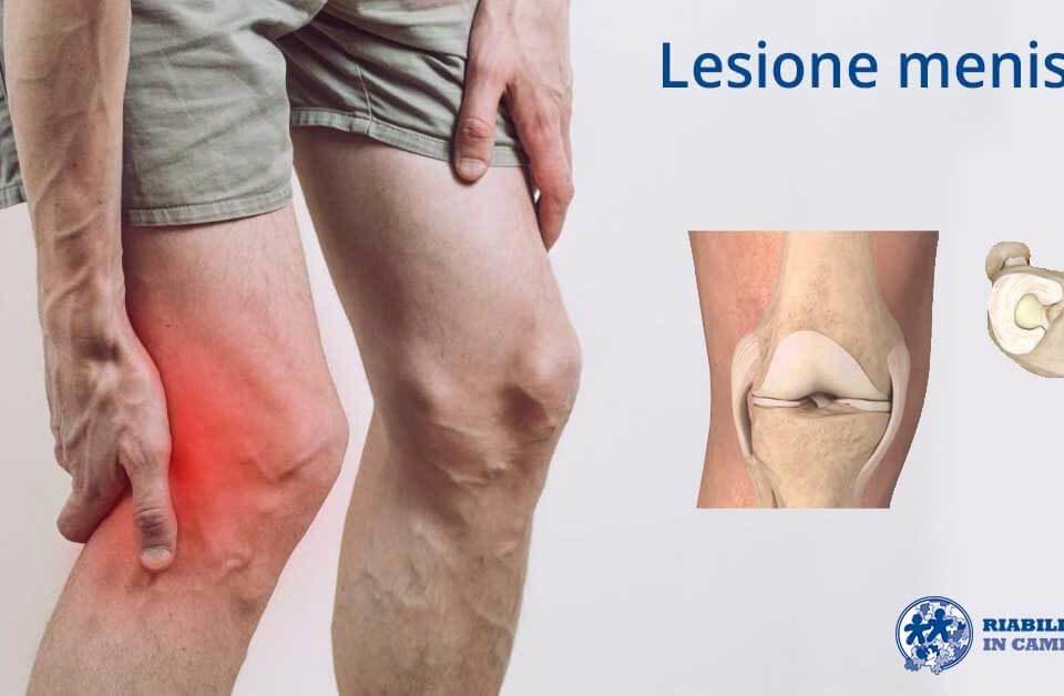 fisioterapia e riabilitazione per la lesione al menisco a napoli