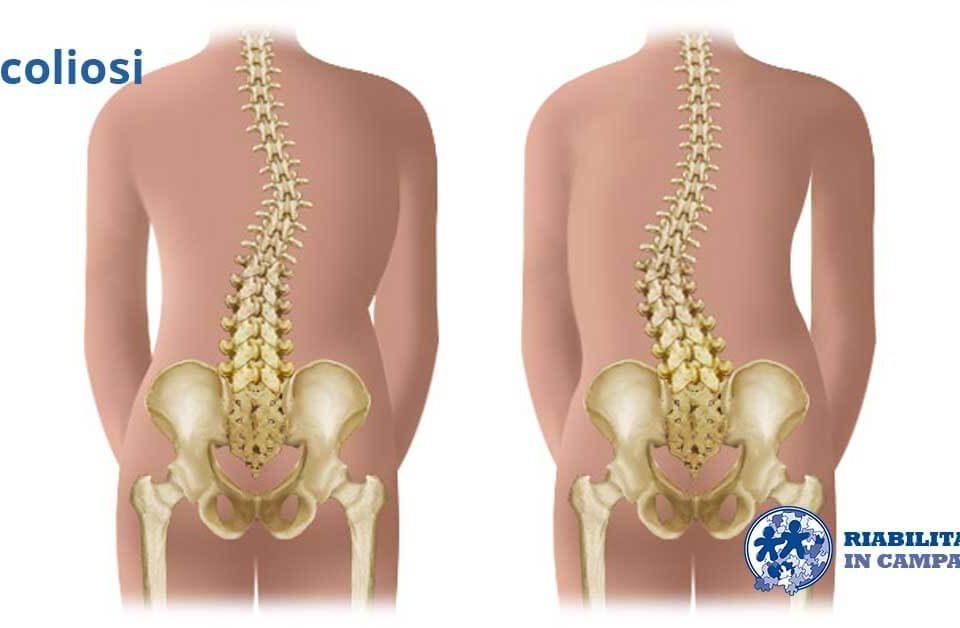 scoliosi fisioterapia e riabilitazione napoli