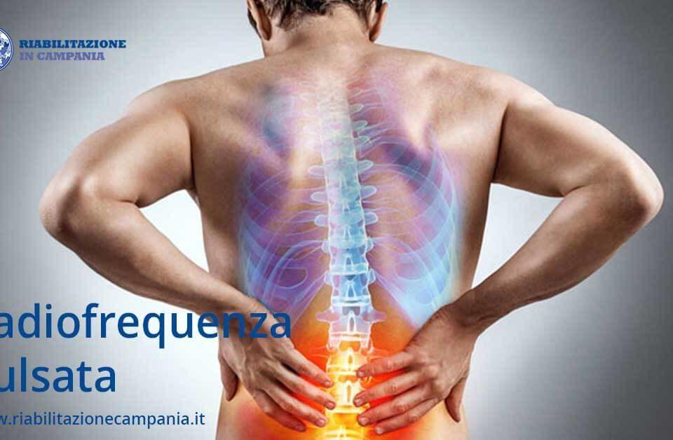 radiofrequenza pulsata riabilitazione campania fisioterapia napoli