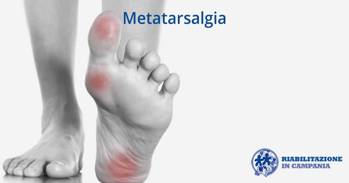 l'immagine è rappresentativa della metatarsalgia fisioterapia e riabilitazione napoli