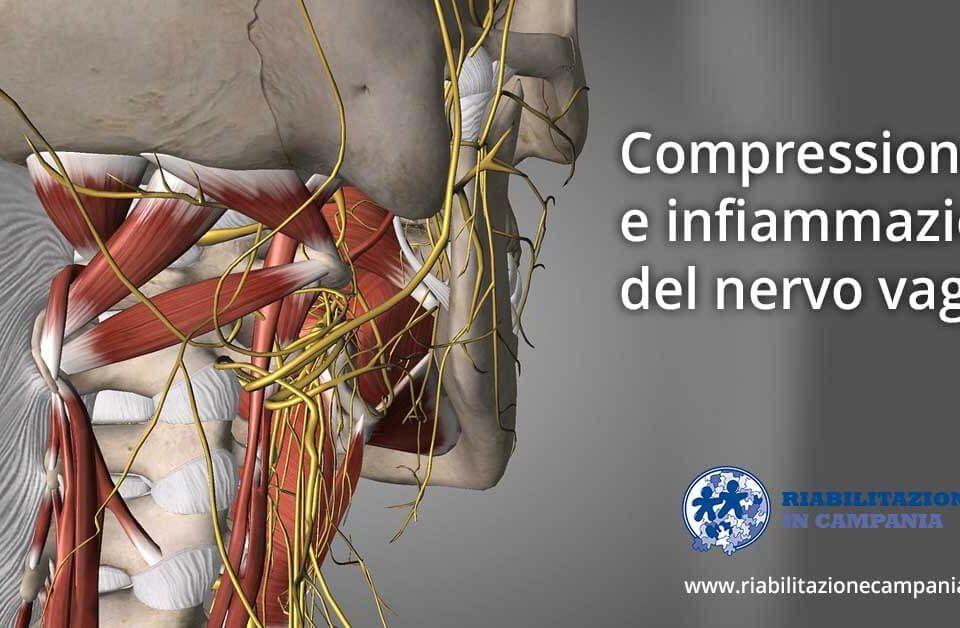 compressione e infiammazione del nervo vago napoli riabilitazione campania