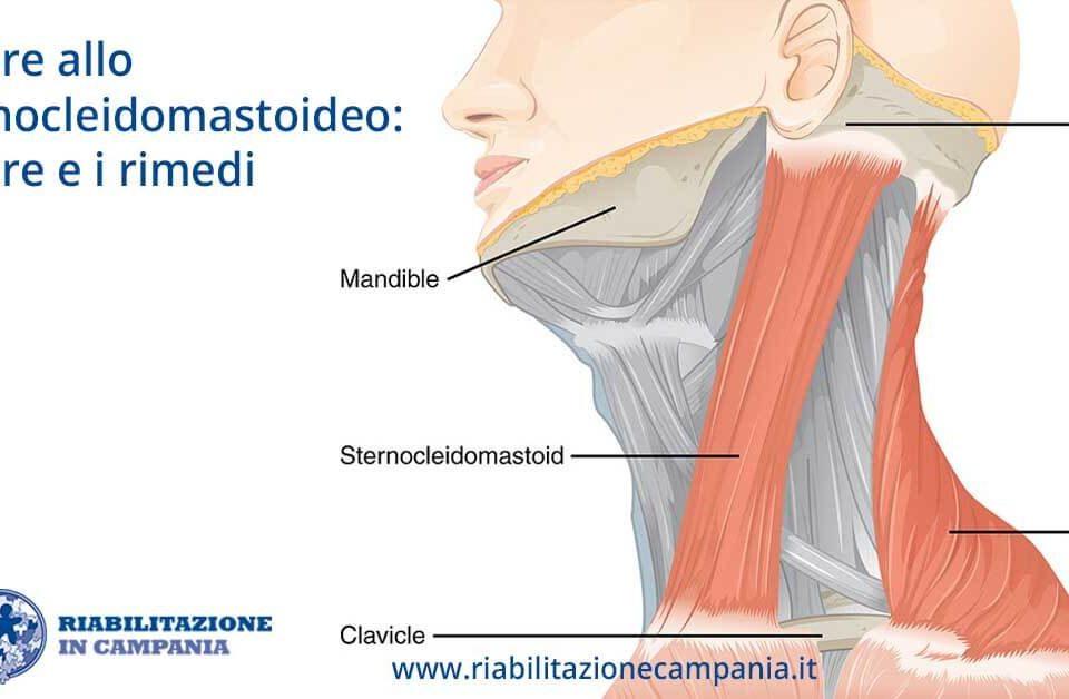 sternocleidomastoideo fisioterapia e riabilitazione napoli