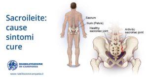 Sacroileite sintomi cura fisioterapia e riabilitazione napoli