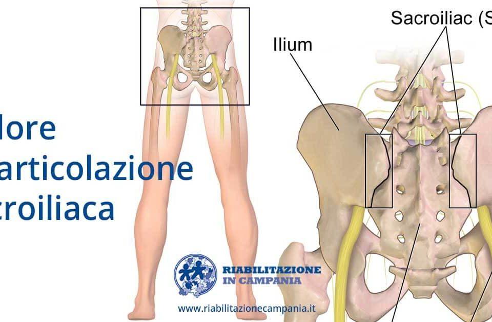dolore articolazione sacroiliaca fisioterapia e riabilitazione napoli