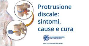 protusione discale fisioterapia e riabilitazione napoli