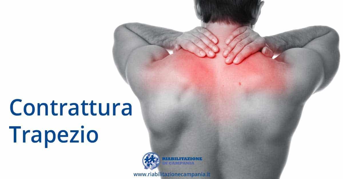 Contrattura Trapezio Sintomi Cause trattamenti fisioterapia e riabilitazione napoli