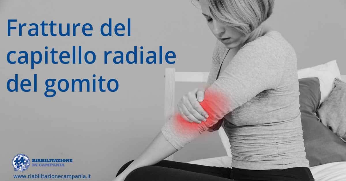Fratture del capitello radiale del gomito fisioterapia e riabilitazione napoli