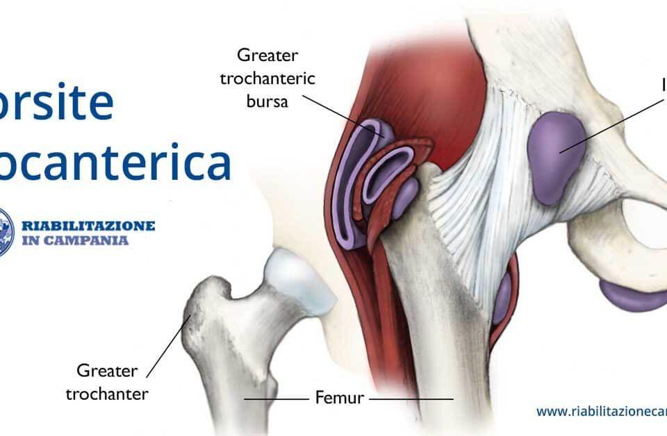 Trocanterite o borsite trocanterica fisioterapia e riabilitazione napoli