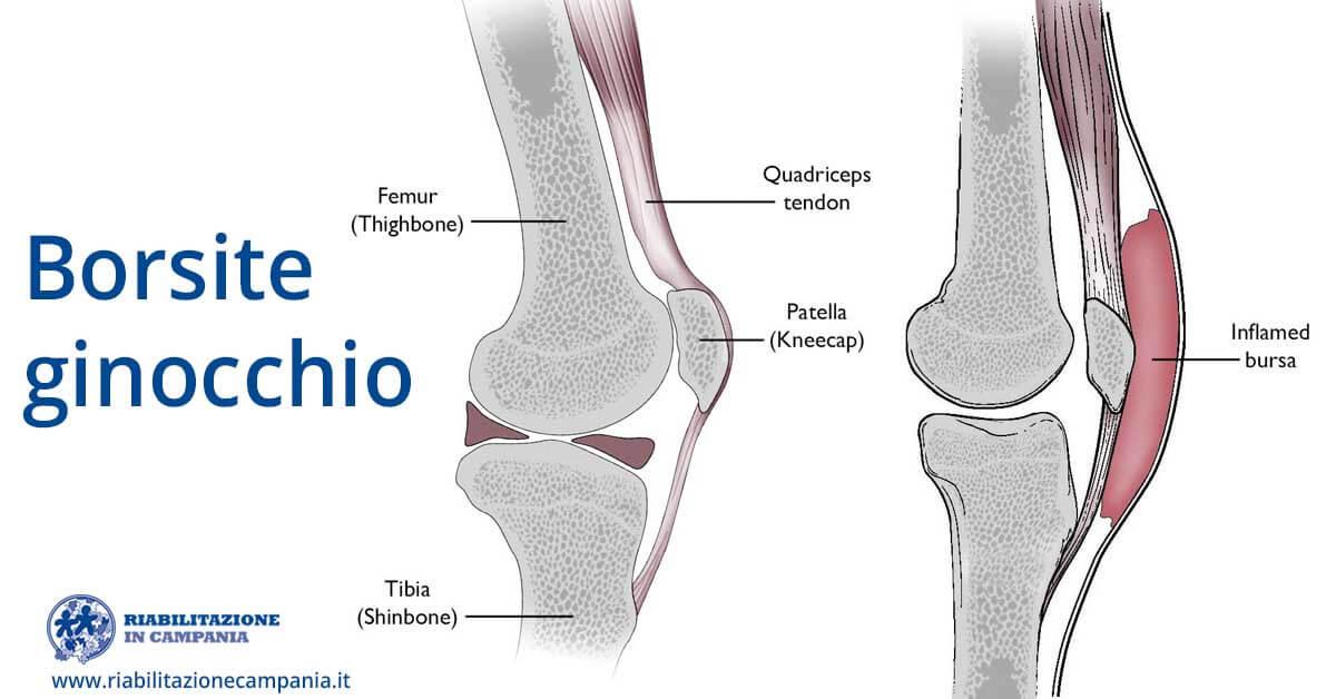 borsite ginocchio fisioterapia e riabilitazione napoli