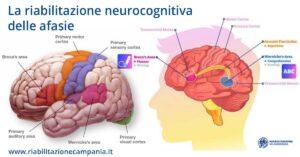 La riabilitazione neurocognitiva delle afasie riabilitazione campania