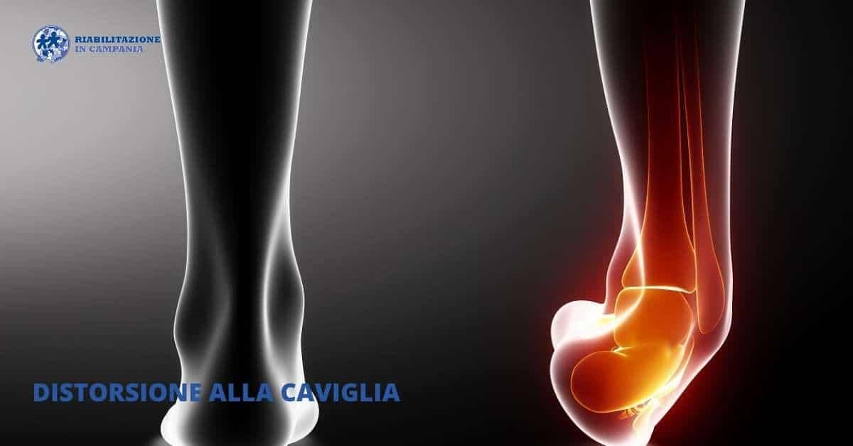 Distorsione alla caviglia - Riabilitazione in campania