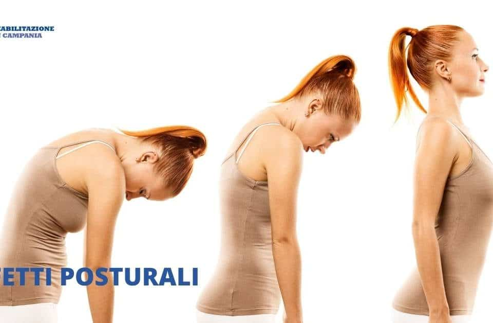Difetti posturali - Riabilitazione campania