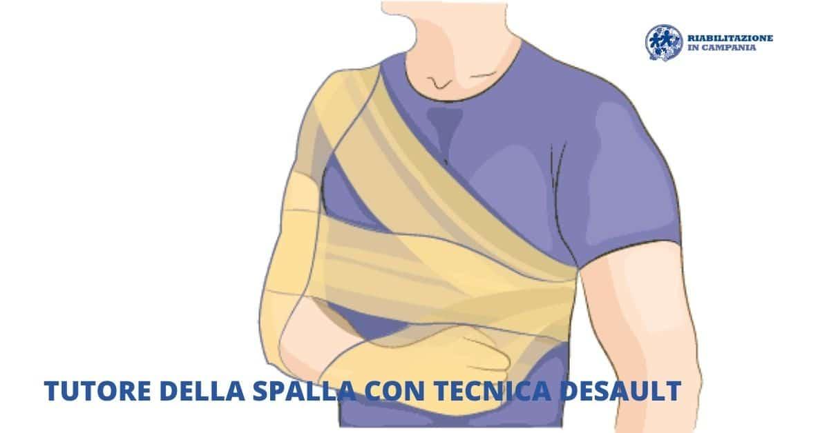 Tutore della spalla con tecnica di bendaggio desault