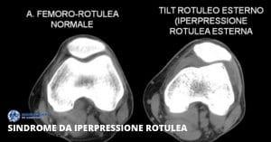 Iperpressione rotulea fisioterapia per sindrome napoli