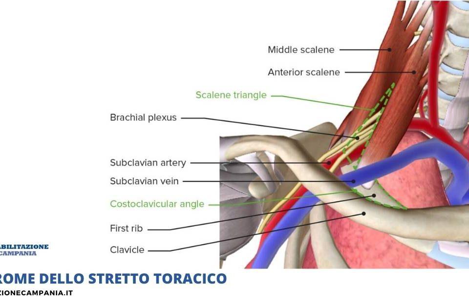 Sindrome-dello-stretto-toracico-riabilitazione-campania-napoli