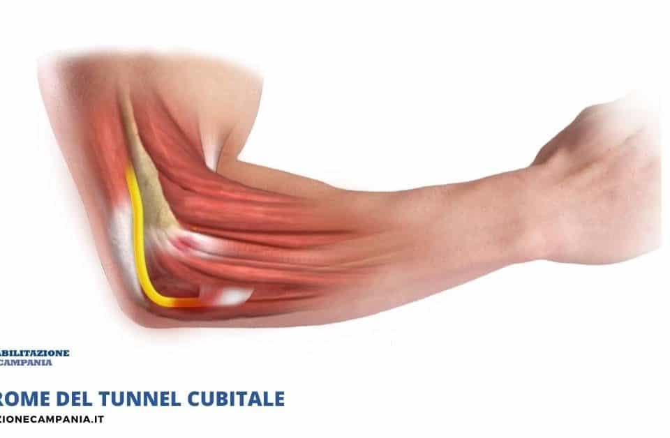 Sindrome del tunnel cubitale fisioterapia e riabilitazione napoli